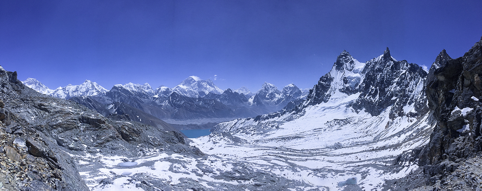 Trek for a Cause: Incredible Journey to Everest Basecamp